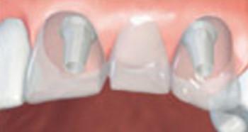 Do lepega in nepozabnega nasmeha z implantati