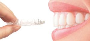 Aparat, ki povrne nasmeh in poravna zobe