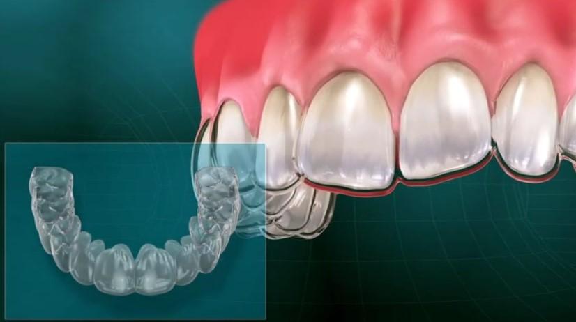Poravnava zob z opornico in zdravljenje parodontalne bolezni