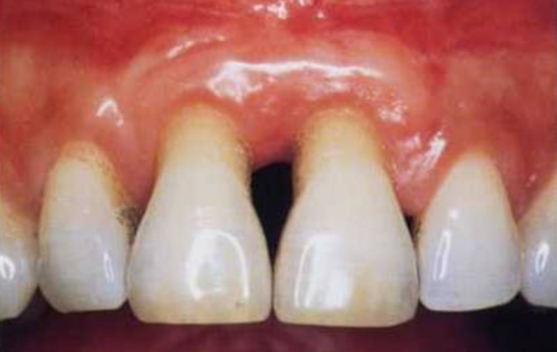 Paradontoza povzroči izgubo zob
