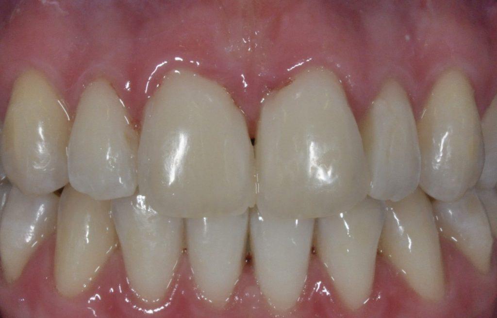 Učinkoviti domači pripravki za beljenje zob